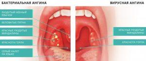 вирусная и бактериальная ангина вид горла