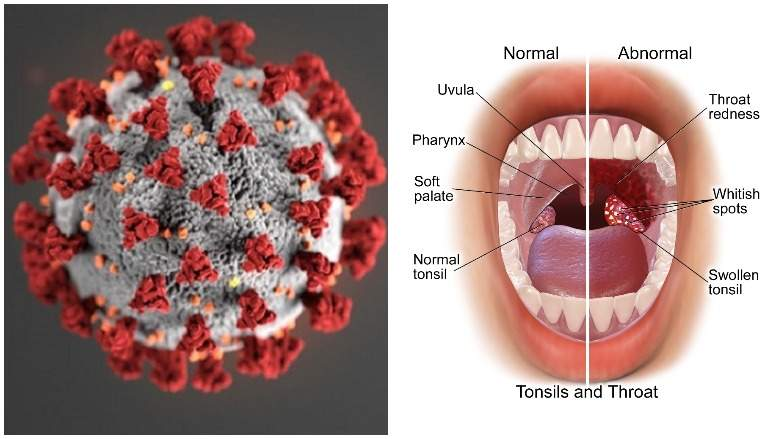 усложнения на горло при коронавирусе